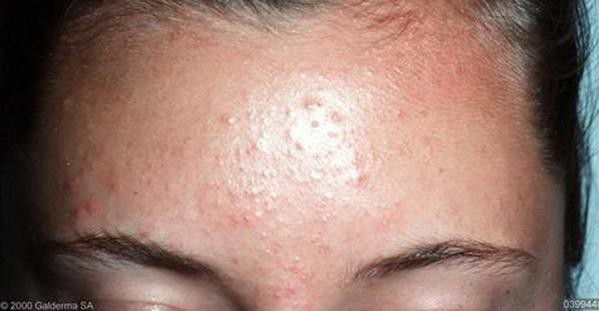how to treat fungal acne on face