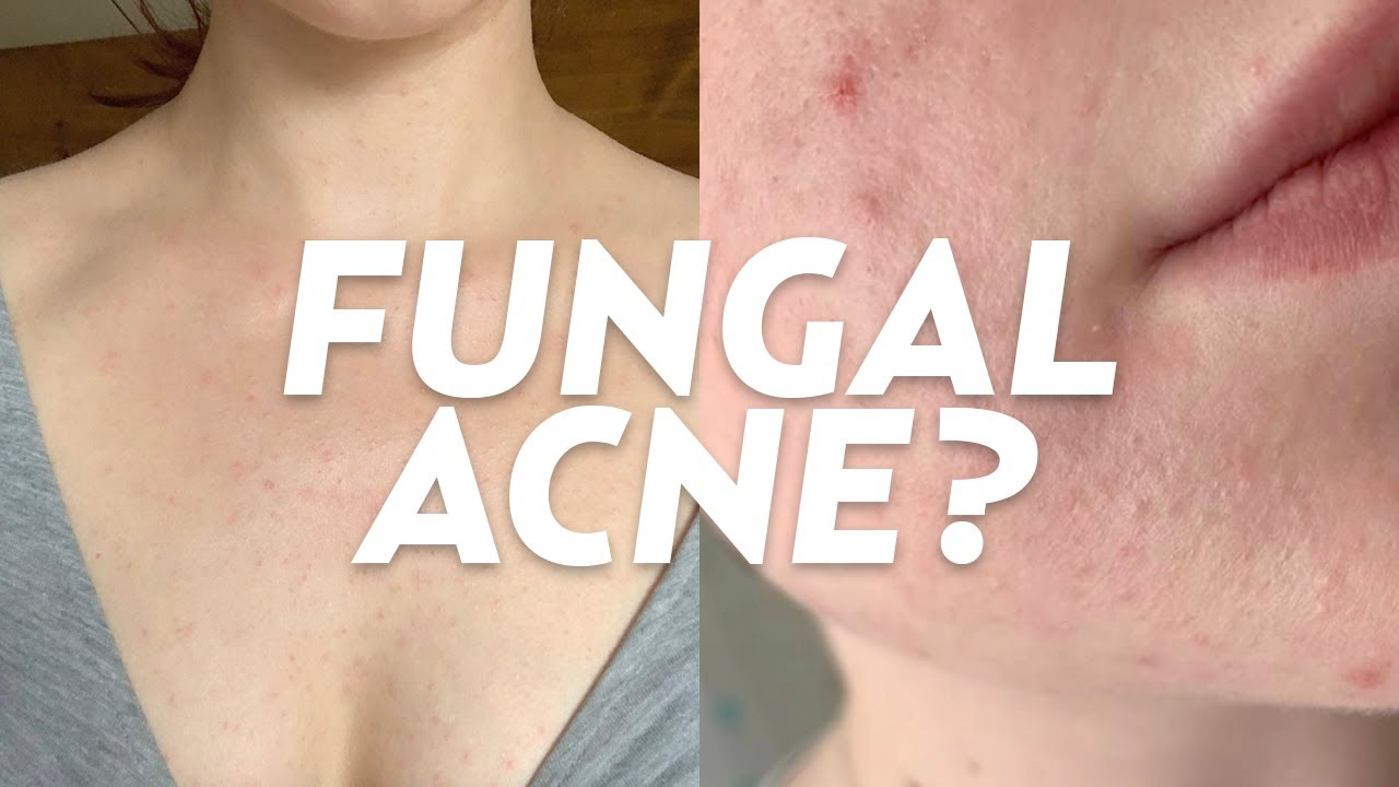 treatment for fungal acne on face
