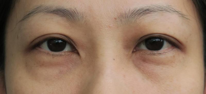 vitamin untuk hilangkan eyebag
